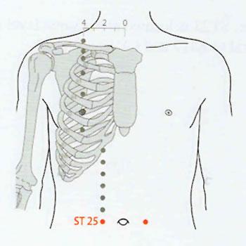 Acupuncture Sida